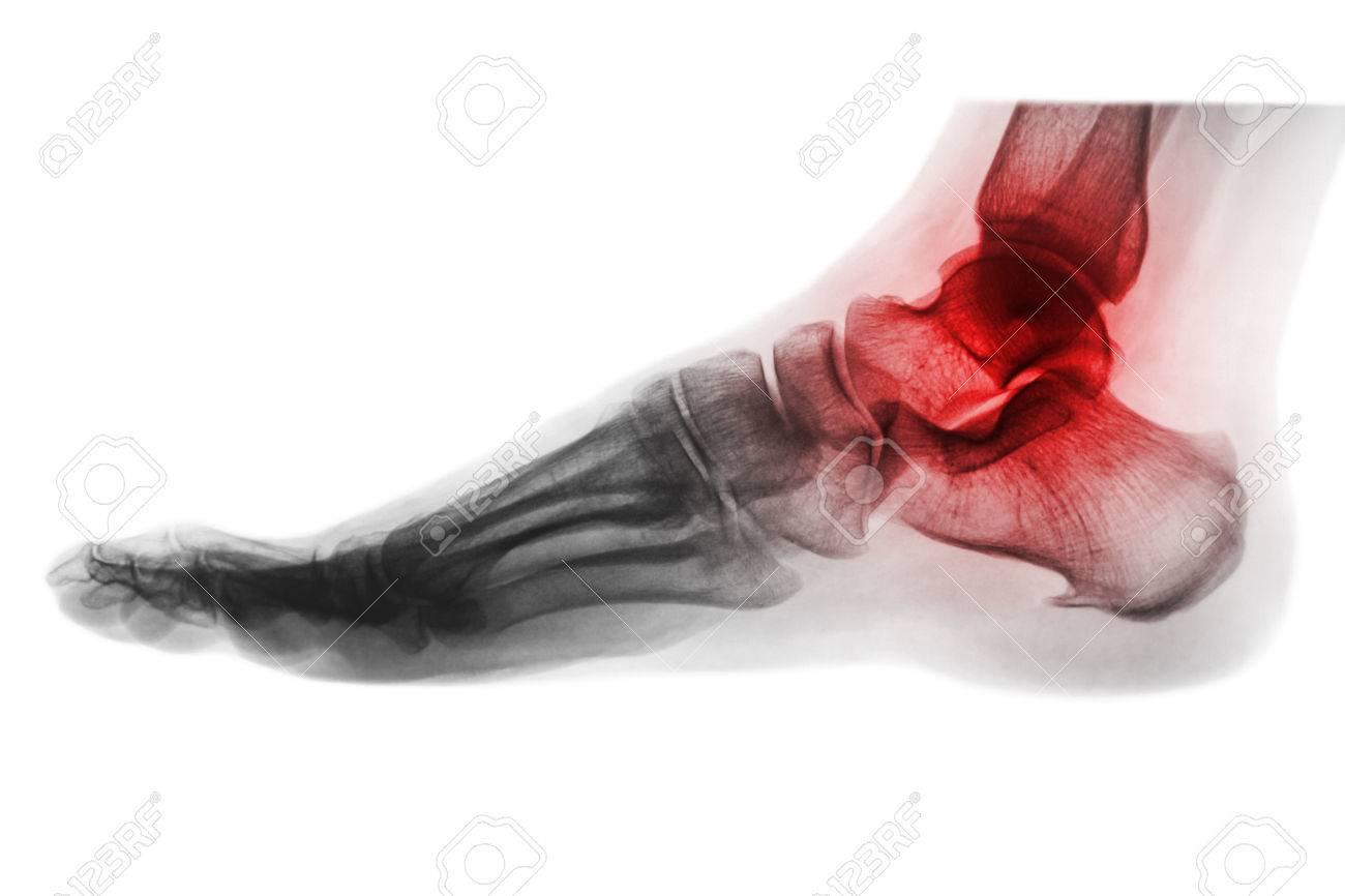 Atemberaubend Knochen Des Beins Und Des Fußes Galerie - Anatomie ...