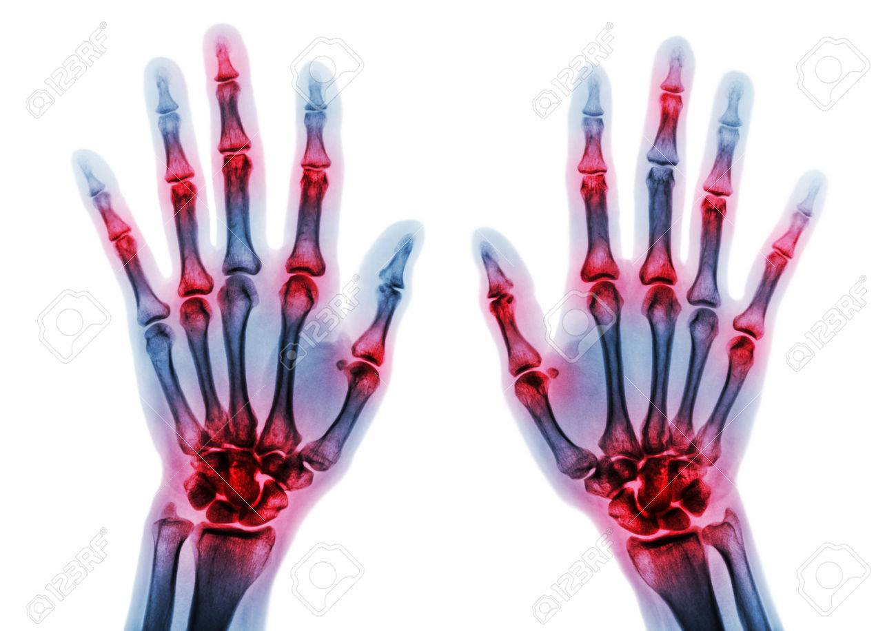 Arthritis multiple joint of fingers . Film x-ray of both hands and wrists . - 81779179