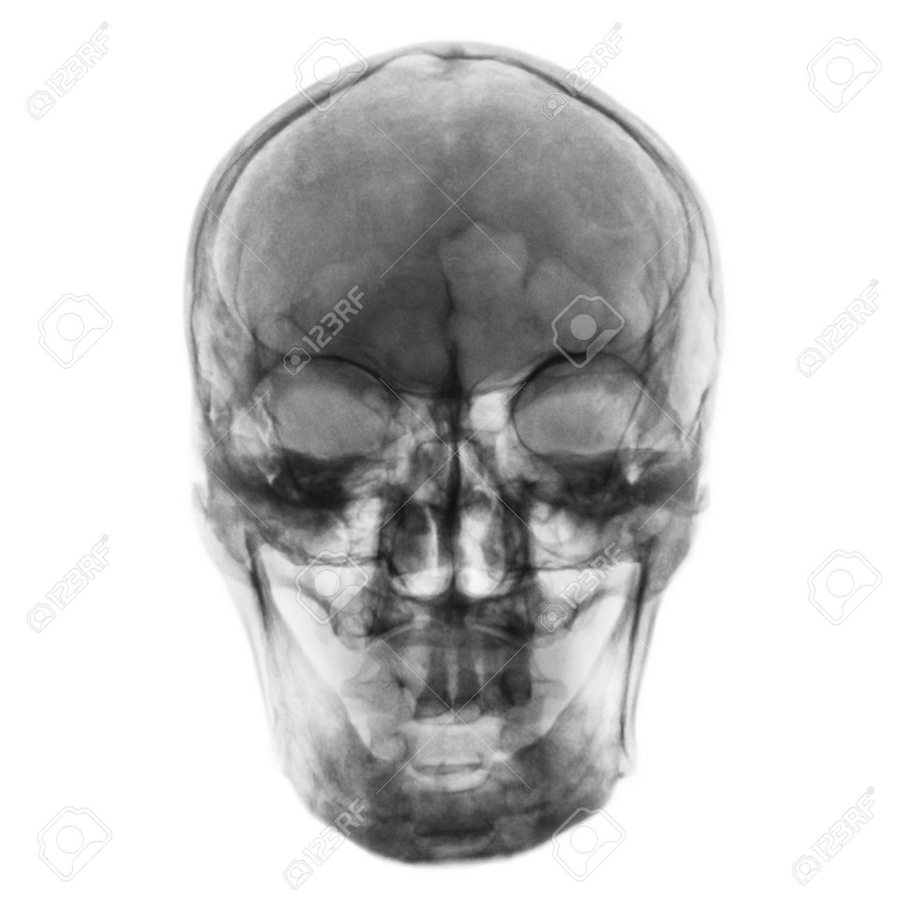 Film X Ray Of Normal Human Skull Front View Stock Photo Picture