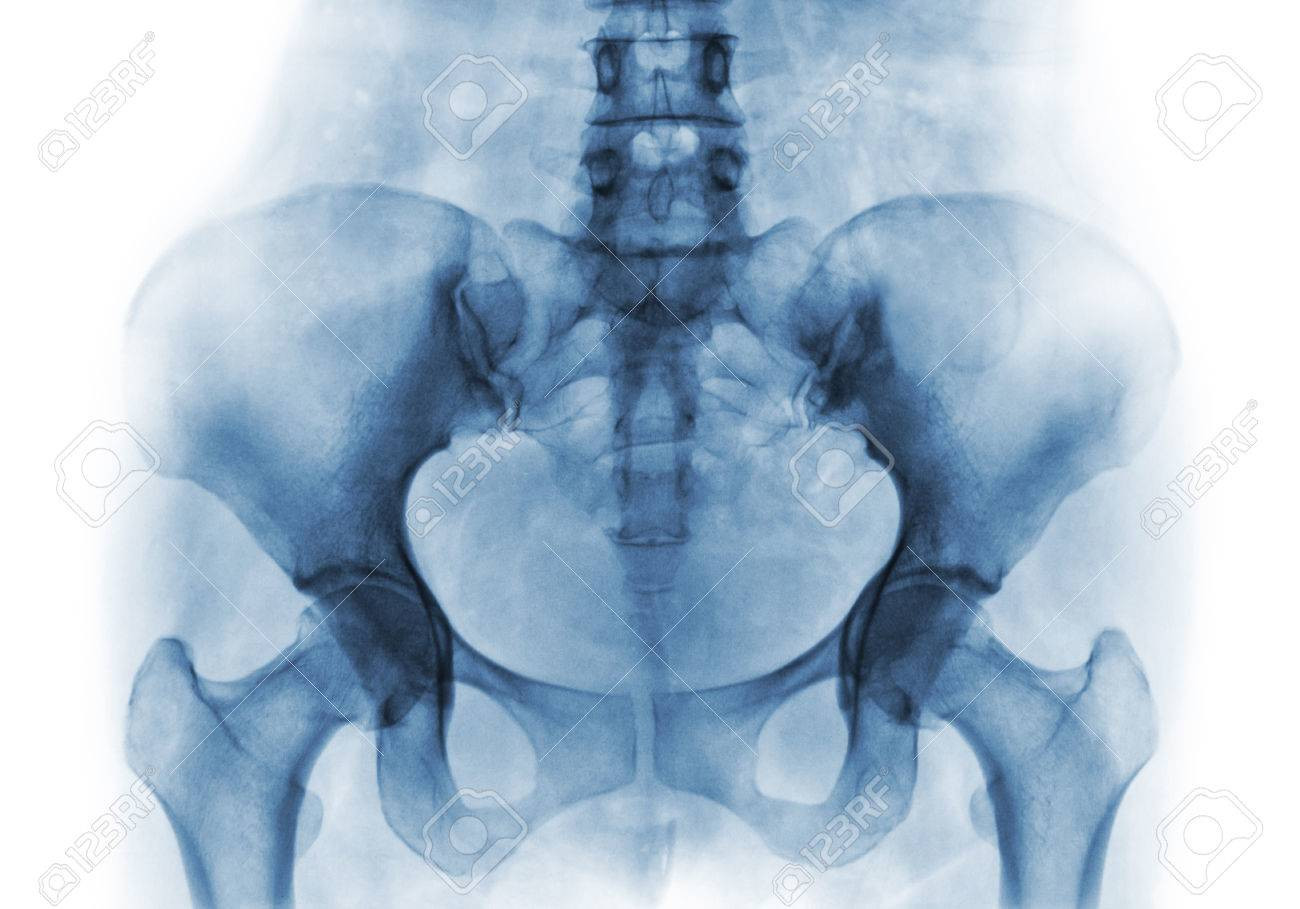 Film X Ray Of Normal Human Pelvis And Hip Joints Stock Photo
