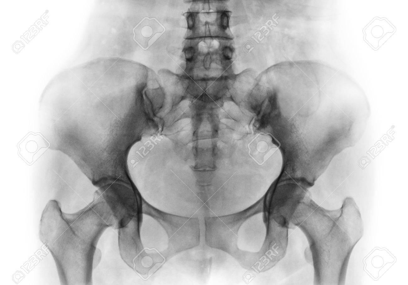 Film Röntgen Von Normalen Menschlichen Becken Und Hüftgelenken ...