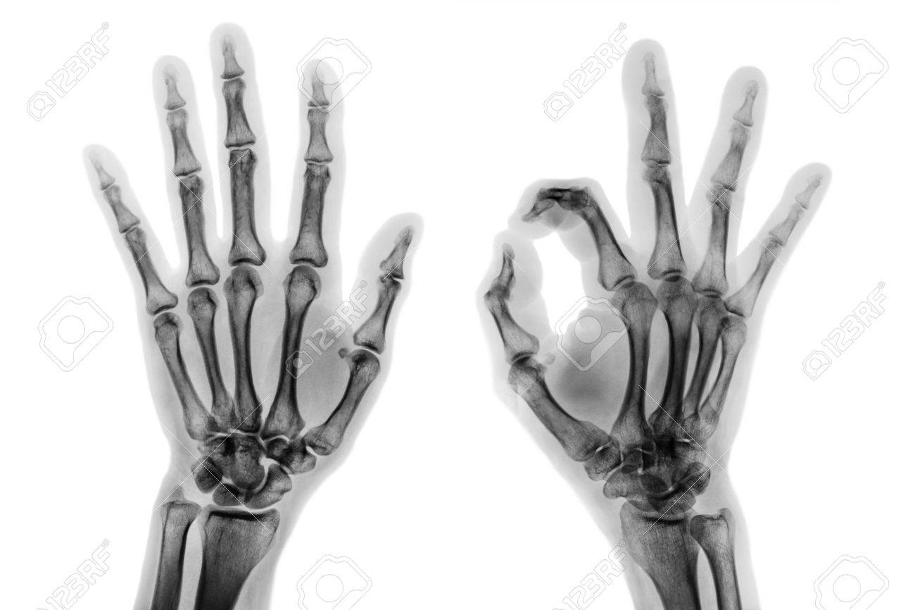 X - ray both hands with OK sign . - 82153046