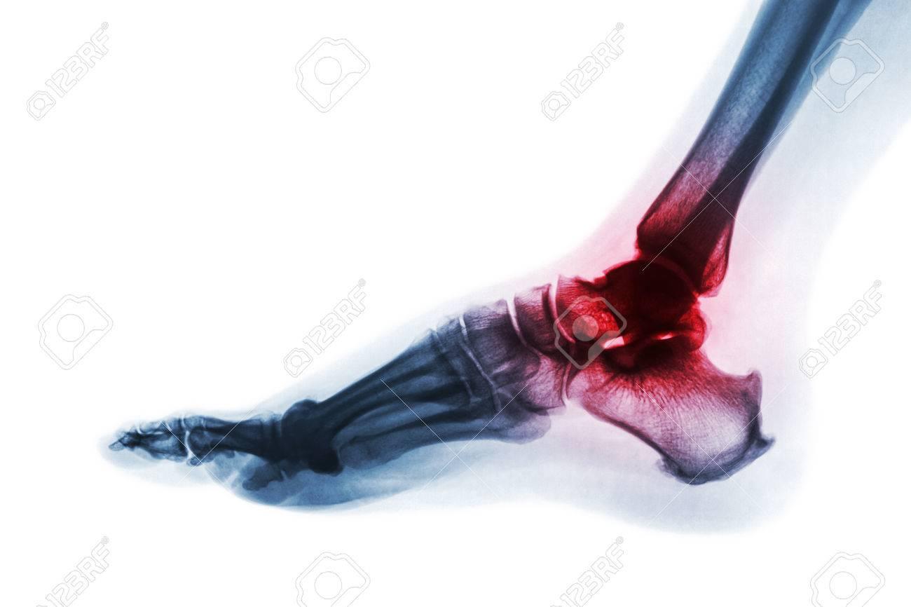 Atemberaubend Knochen Des Knöchels Bilder - Anatomie Von ...