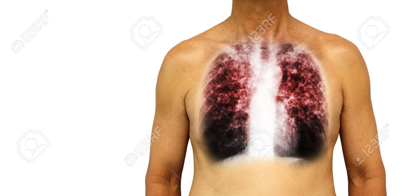 Pulmonary tuberculosis . Human chest with x-ray show interstitial infiltrate both lung due to infection . - 83587190