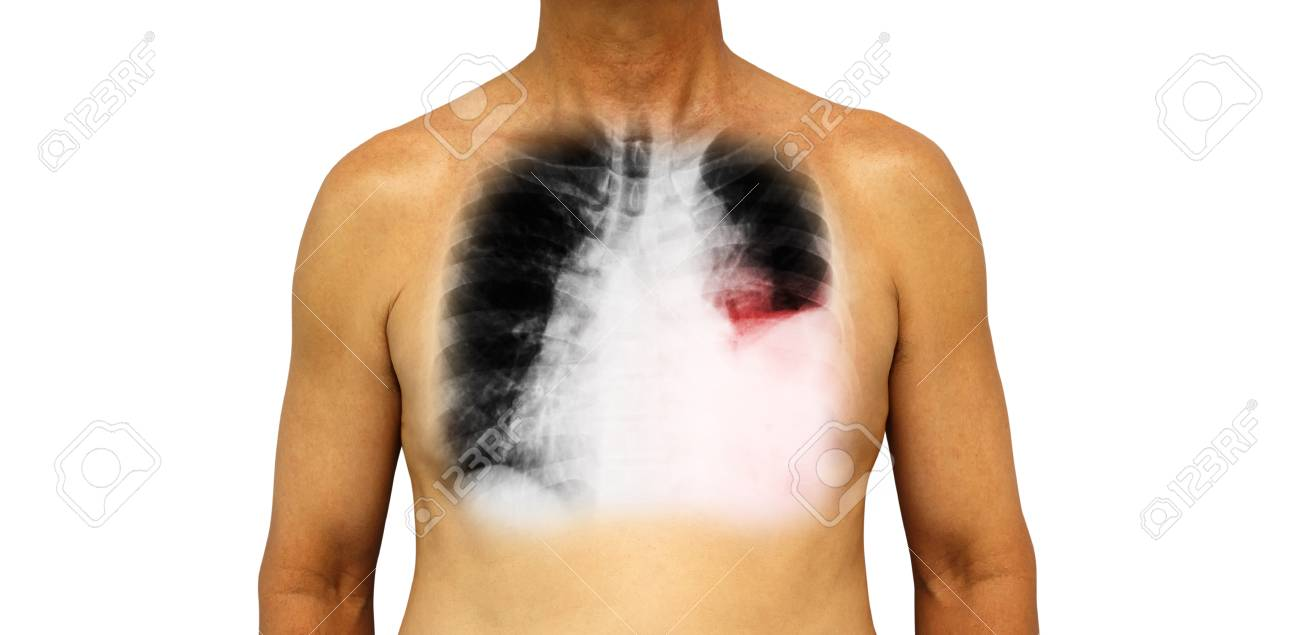 Lung cancer . Human chest and x-ray show pleural effusion left lung due to lung cancer . - 83654062