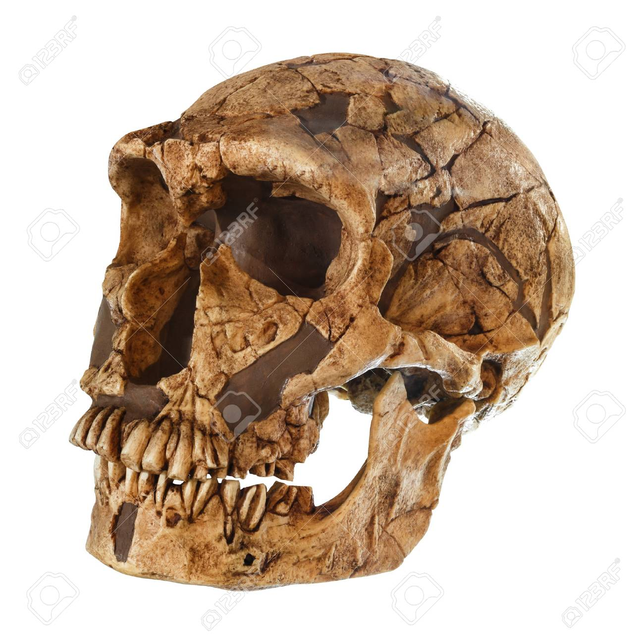 Homo neanderthalensis skull . ( La Ferrassie ) . Dated to 50,000 years ago . Discovered in 1909 in La Ferrassie , France . - 87491770