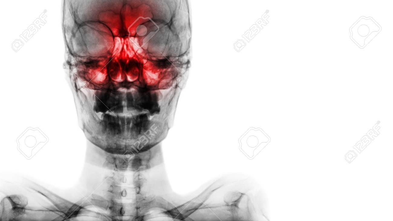 Sinusitis At Frontal Ethmoid Maxillary Sinus Film X Ray