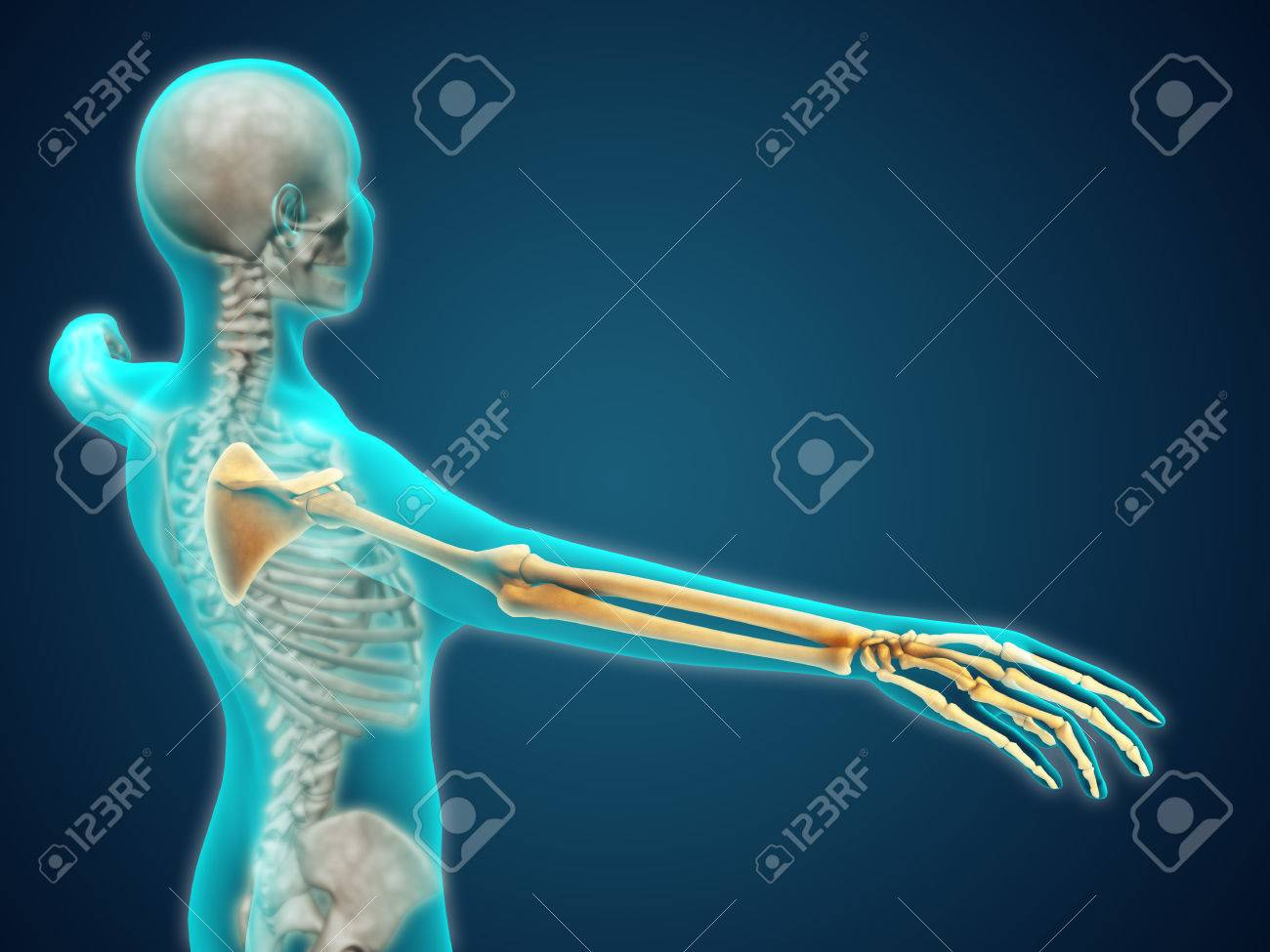 X Ray View Of Human Body Showing Skeletal Bones In The Arm And