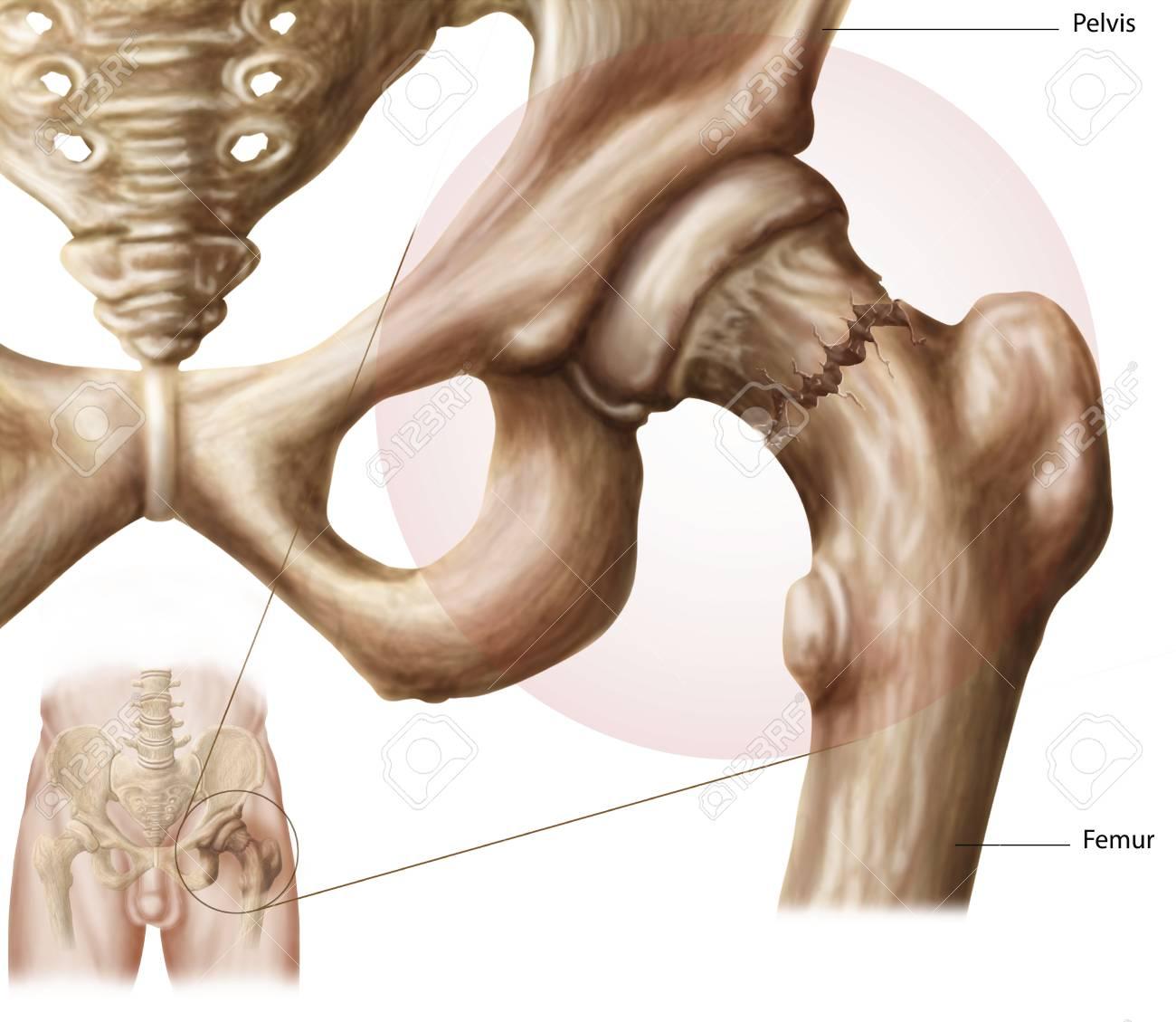 Anatomía De La Fractura De Cadera. Fotos, Retratos, Imágenes Y ...
