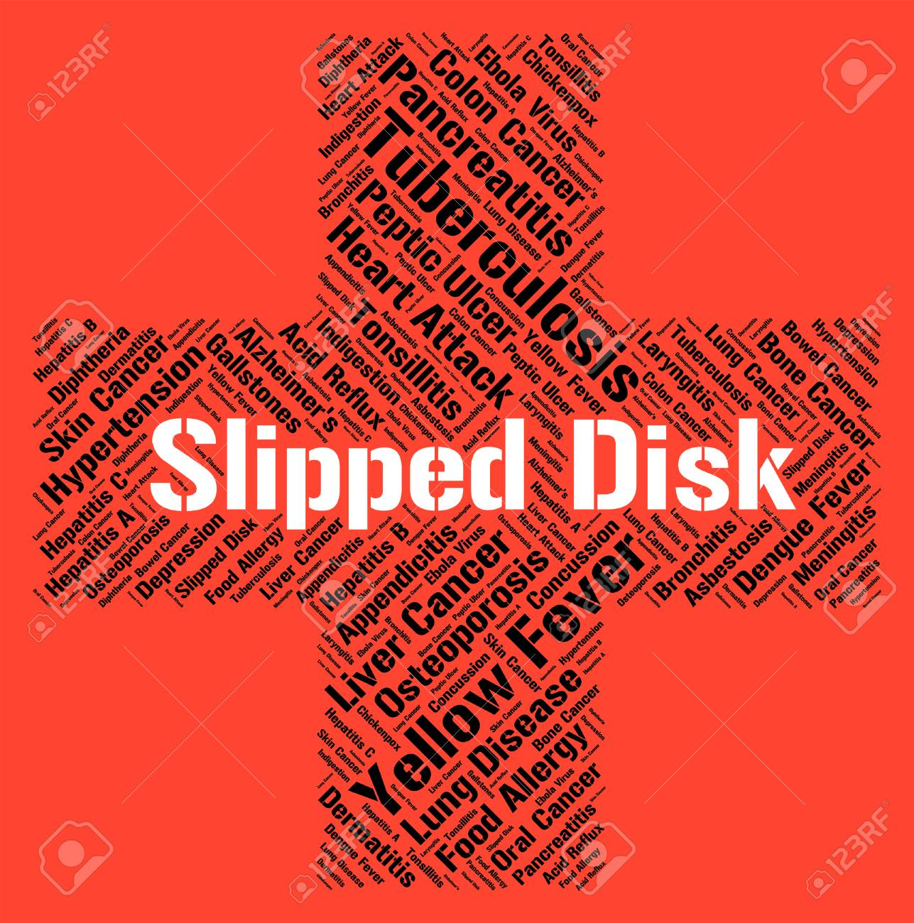 Slipped Disc Meaning Ill Health And Hernia