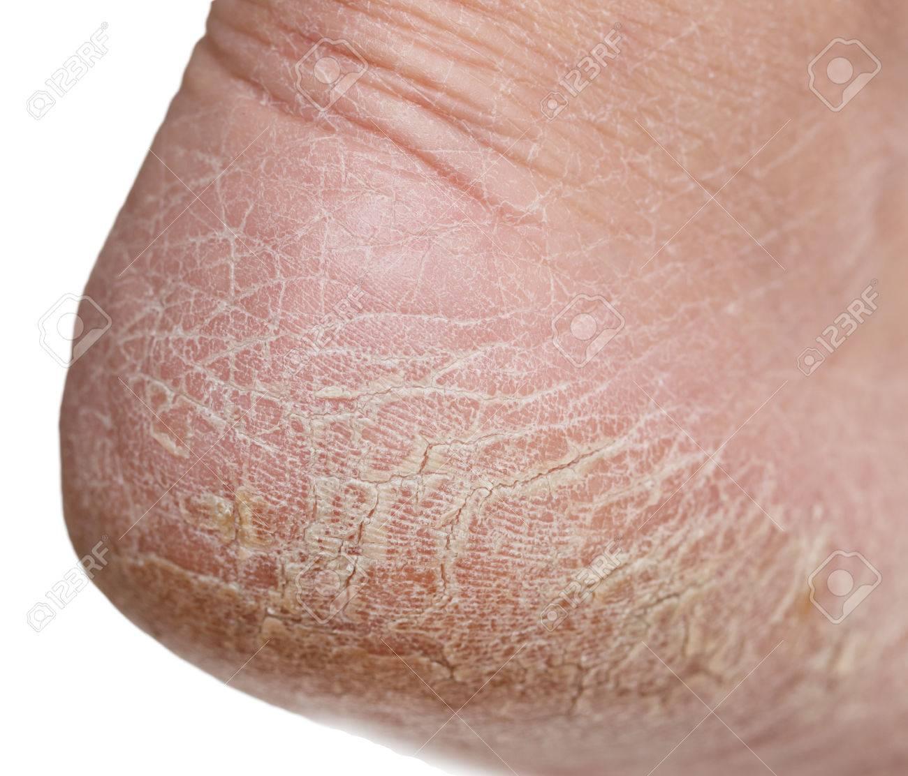 cracked skin on legs