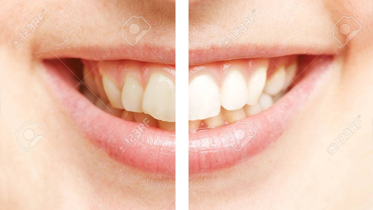 Comparison between white teeth after bleaching and before teeth whitening - 38856851