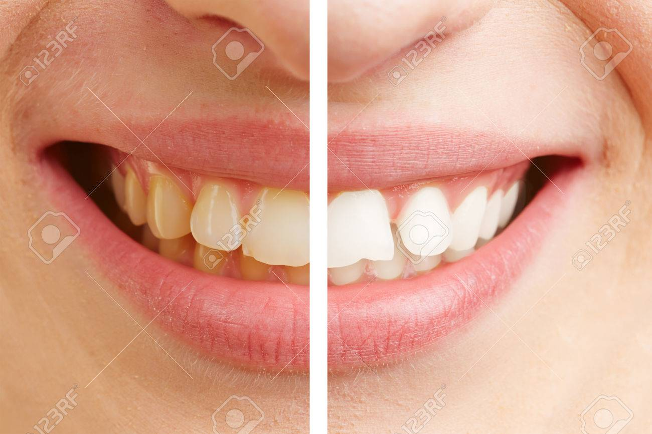 Before and after comparison of teeth whitening of a young woman Stock Photo - 43403410