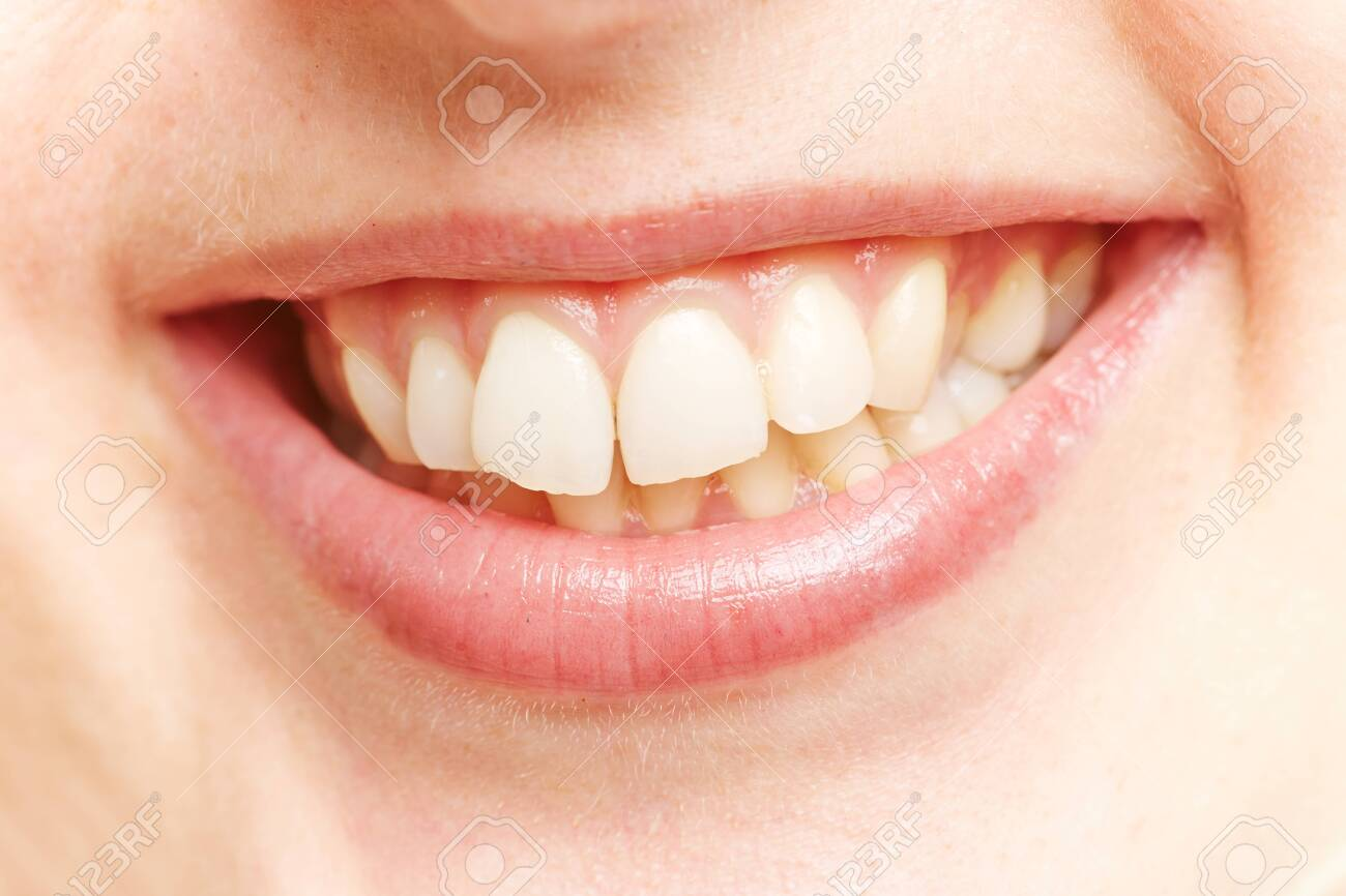 White teeth in the smiling mouth of a young woman - 137444470