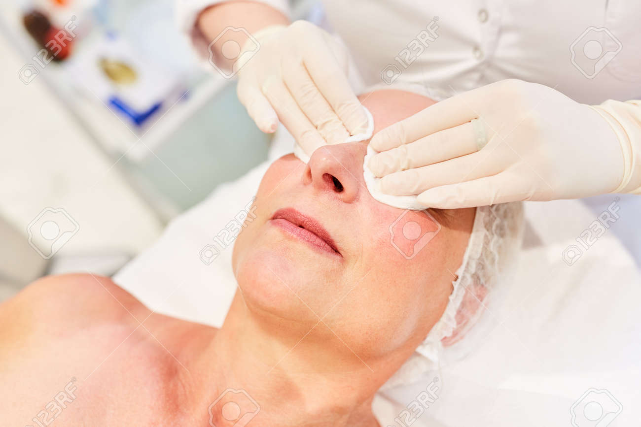 Preparation of eyelid tightening for the patient by Thermage in the beauty clinic - 166079152