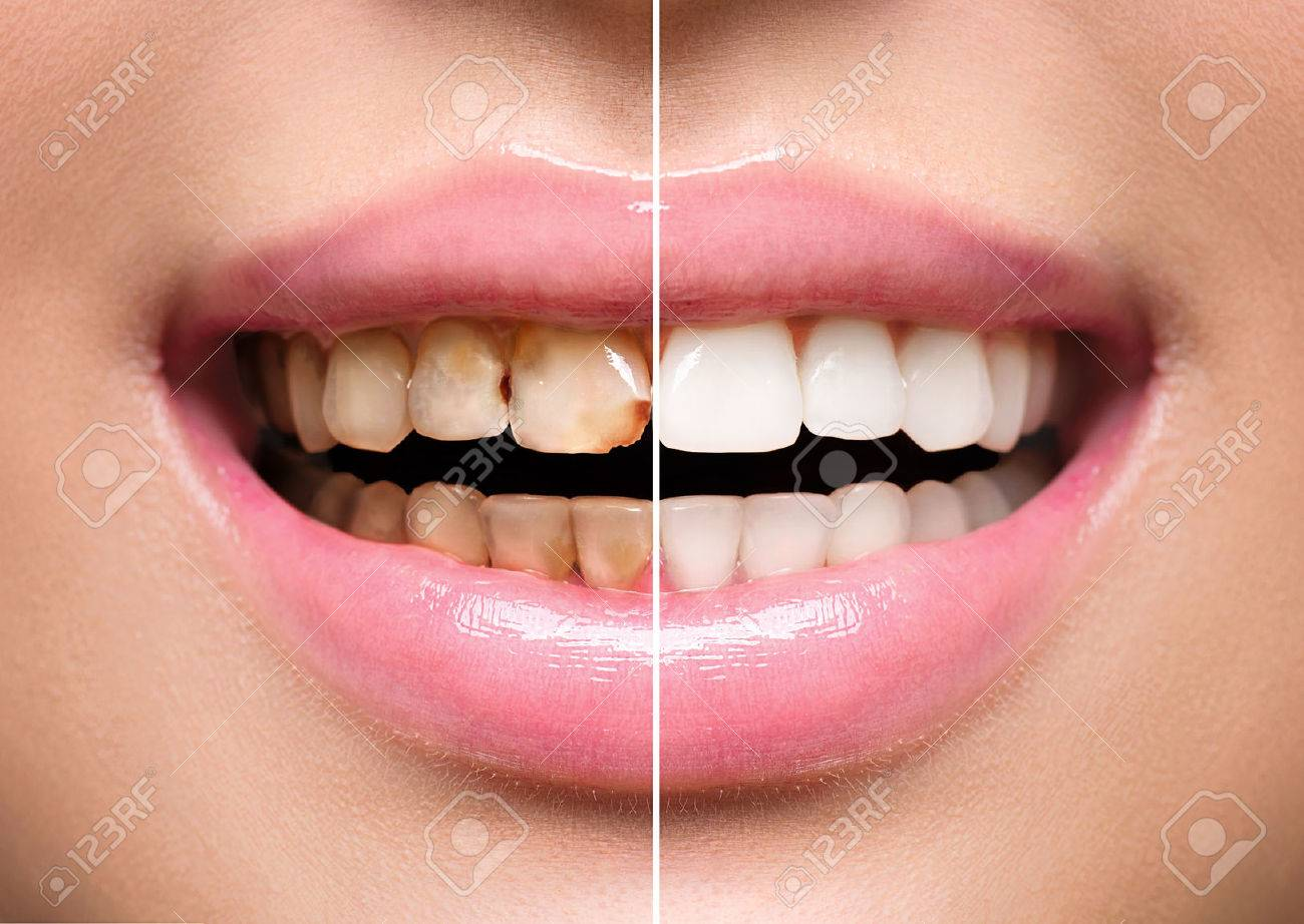 Woman's teeth before and after whitening. Oral care - 58925068