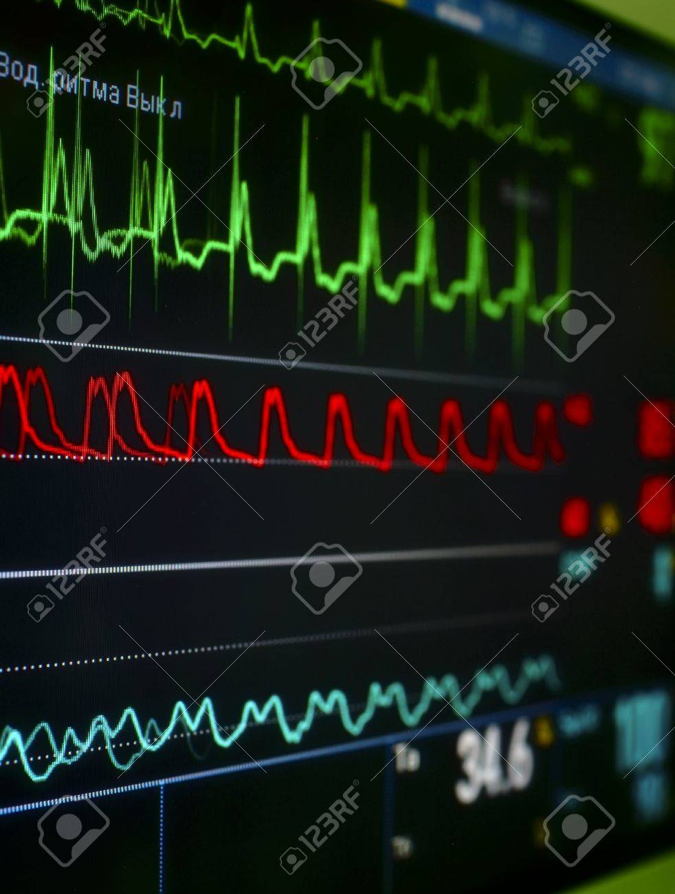 monitor in the ICU The waves of blood pressure, blood oxygen