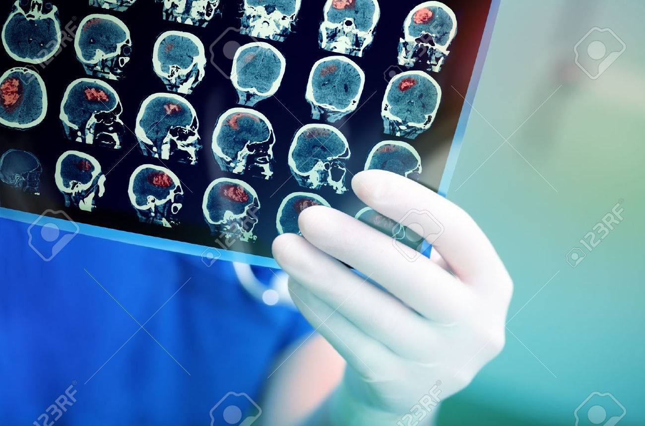 Doctor attentively examines the MRI scan of the patient. - 54221358