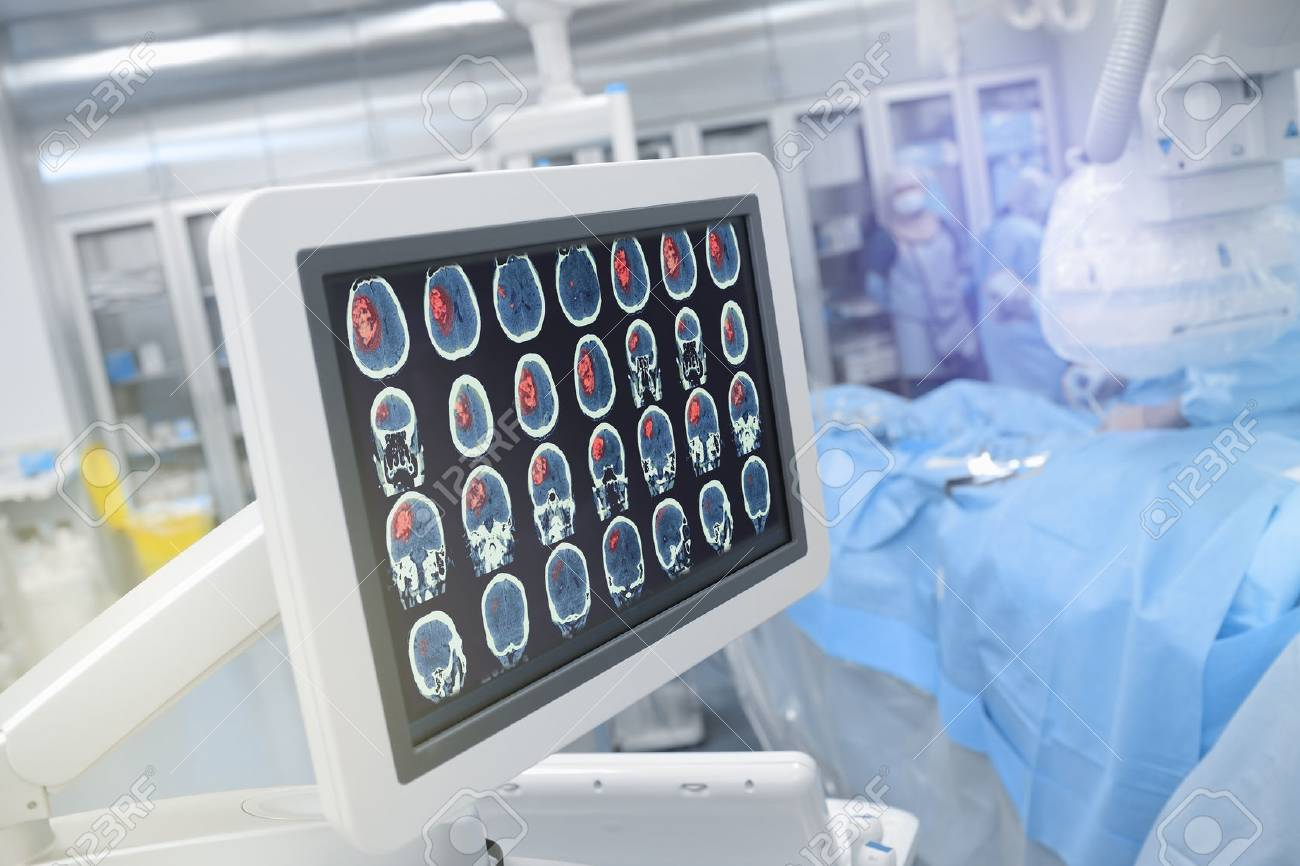 Head scan on the monitor in operating theatre. - 67470481
