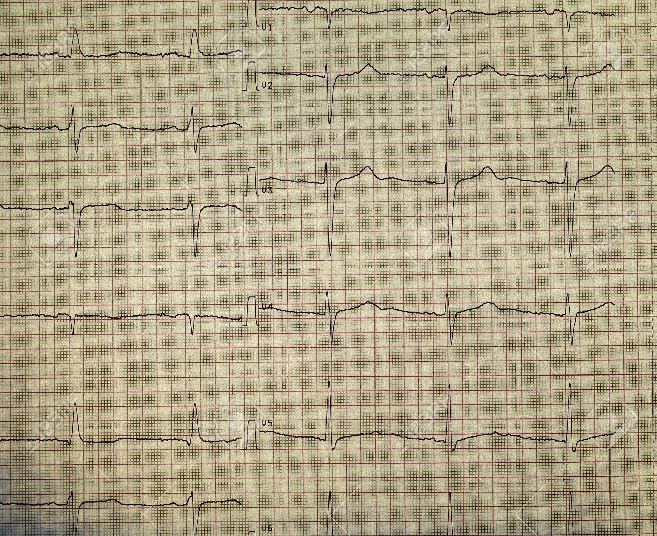 ecg on the plotting paper stock photo picture and royalty free