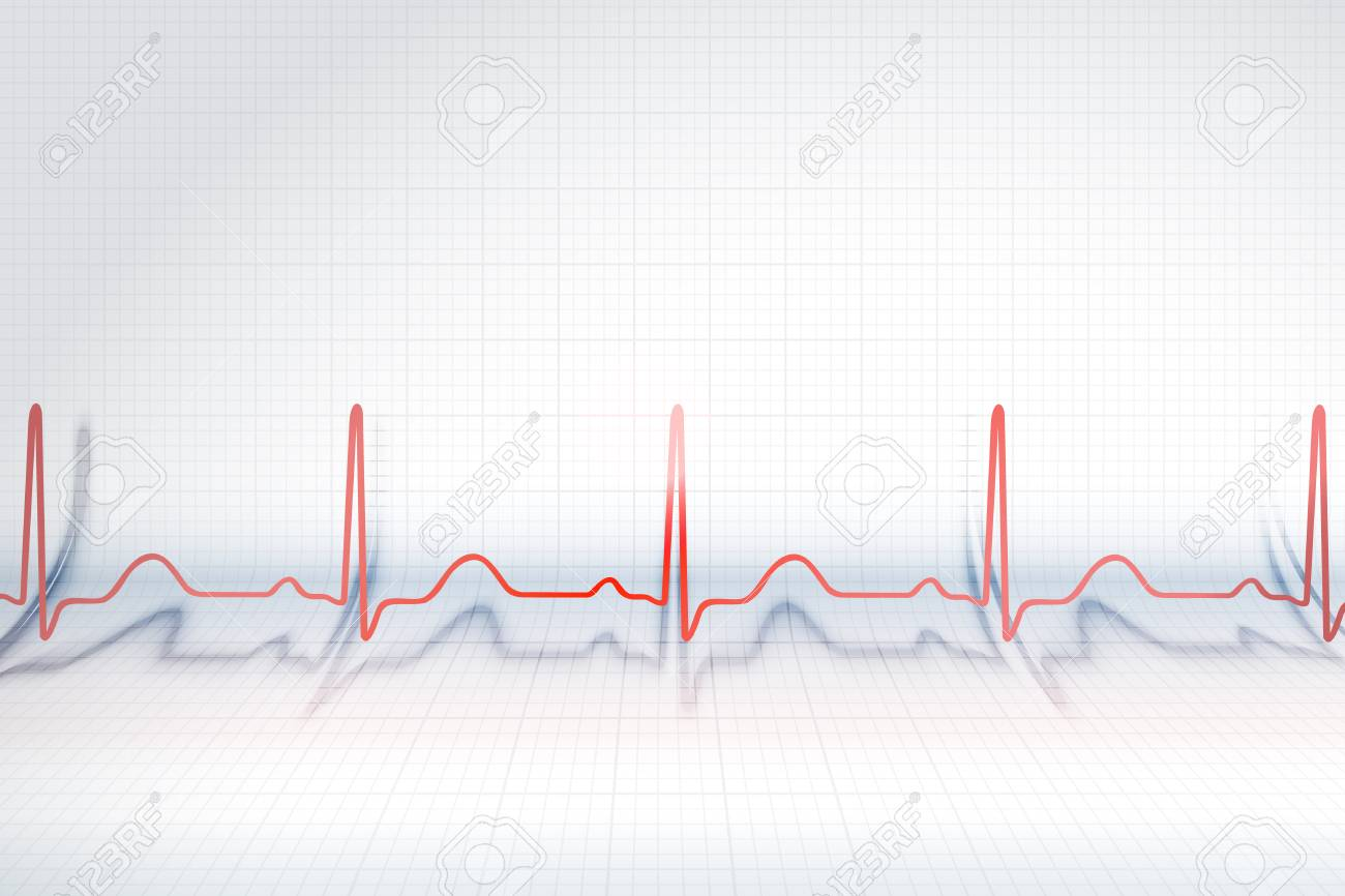 red line of ecg chart on the background of bended plotting paper