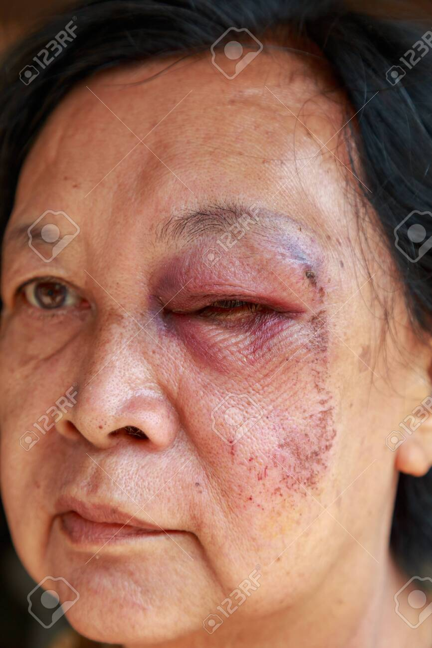 She is asia elderly woman  Her injury to the eyelid swelling