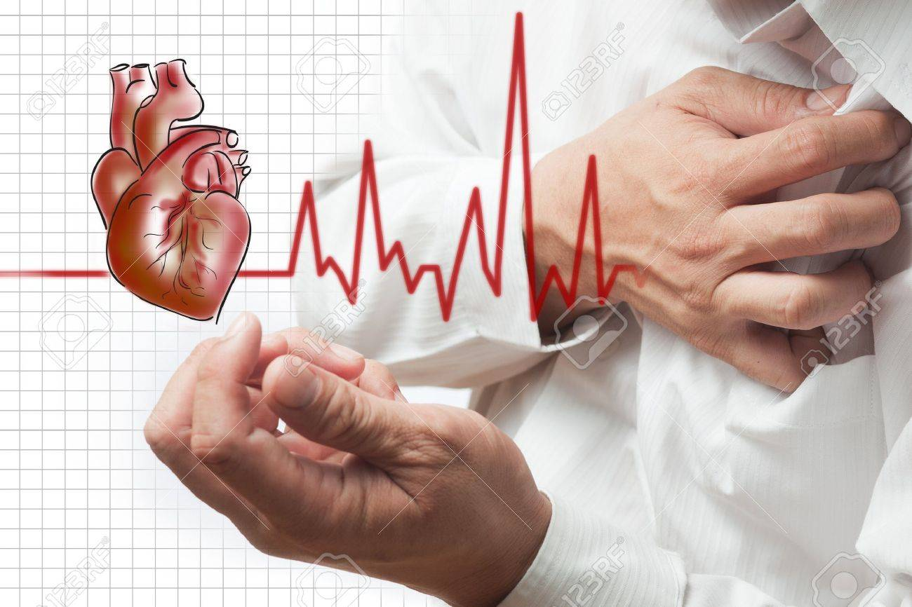 Heart Attack and heart beats cardiogram background Stock Photo - 12395815