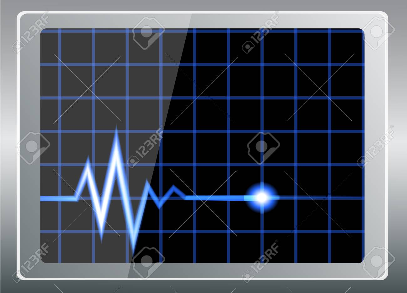 vector illustration-cardiogram on the shiny screen Stock Vector - 21644825