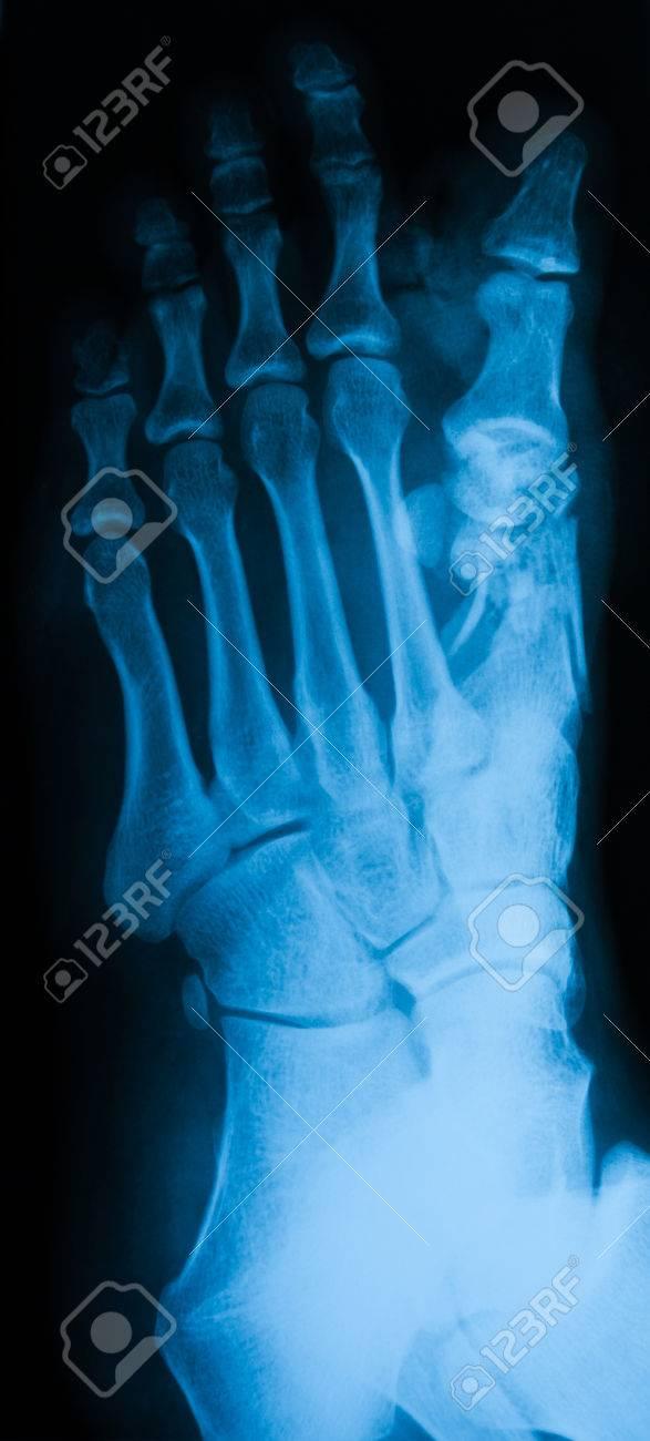X-ray Des Fußes, Schrägansicht, Zeigen Fraktur 1. Mittelfußknochen ...