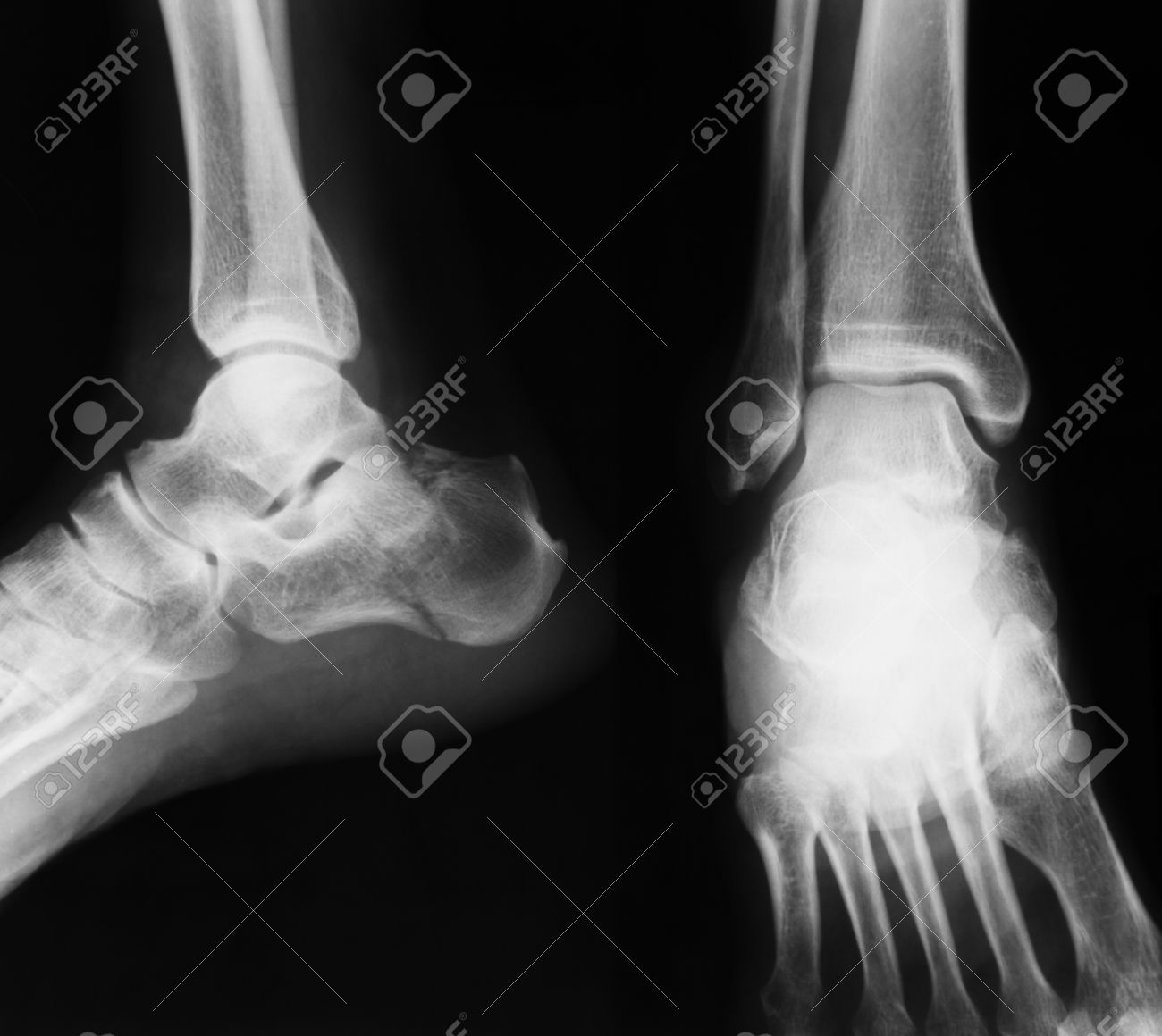 X Ray Image Of Ankle Joint Ap And Lateral View Show Ankle Stock