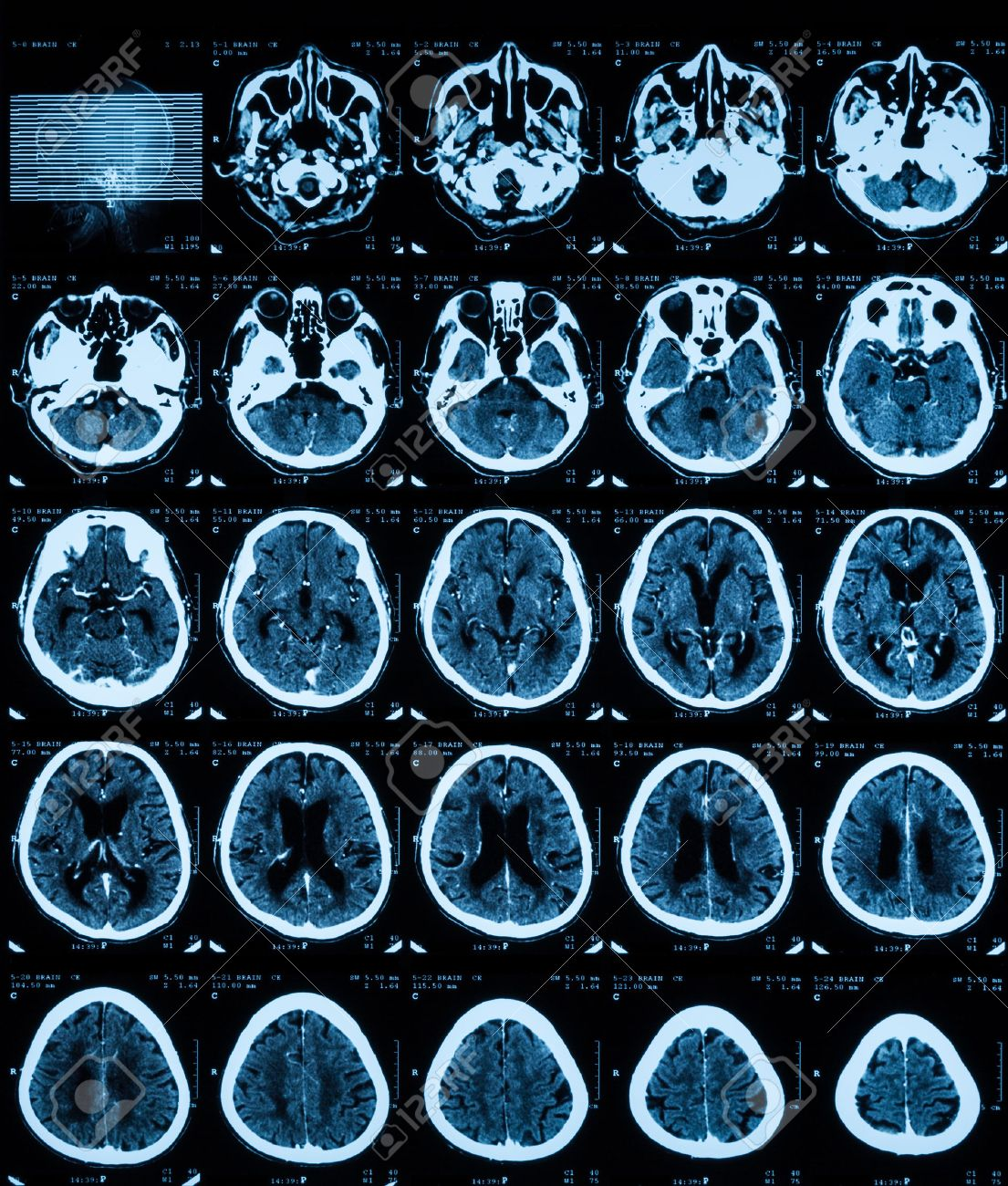 Ct Scan Of The Brain With Contrast Midia. Stock Photo, Picture And ...