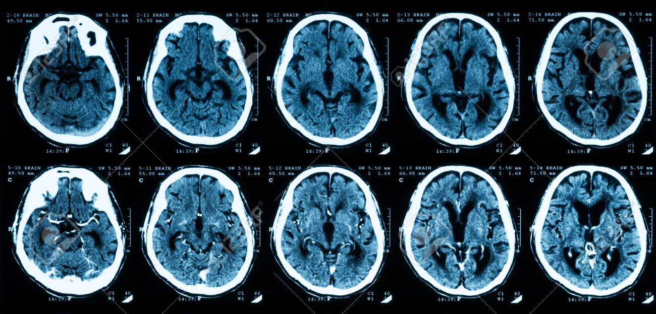Ct scan of the brain comparison between with and without contrast ct scan of the brain comparison between with and without contrast media stock photo ccuart Images