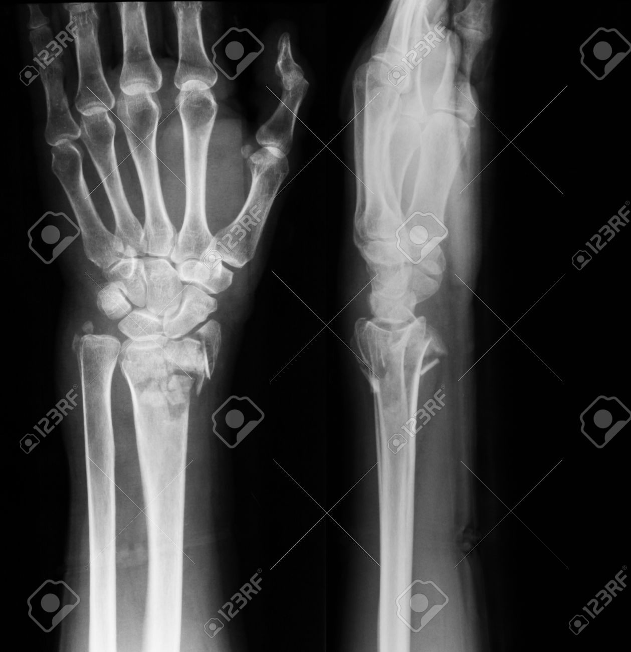 X-ray Image Of Wrist Joint, PA And Lateral View, Showing Ulna ...