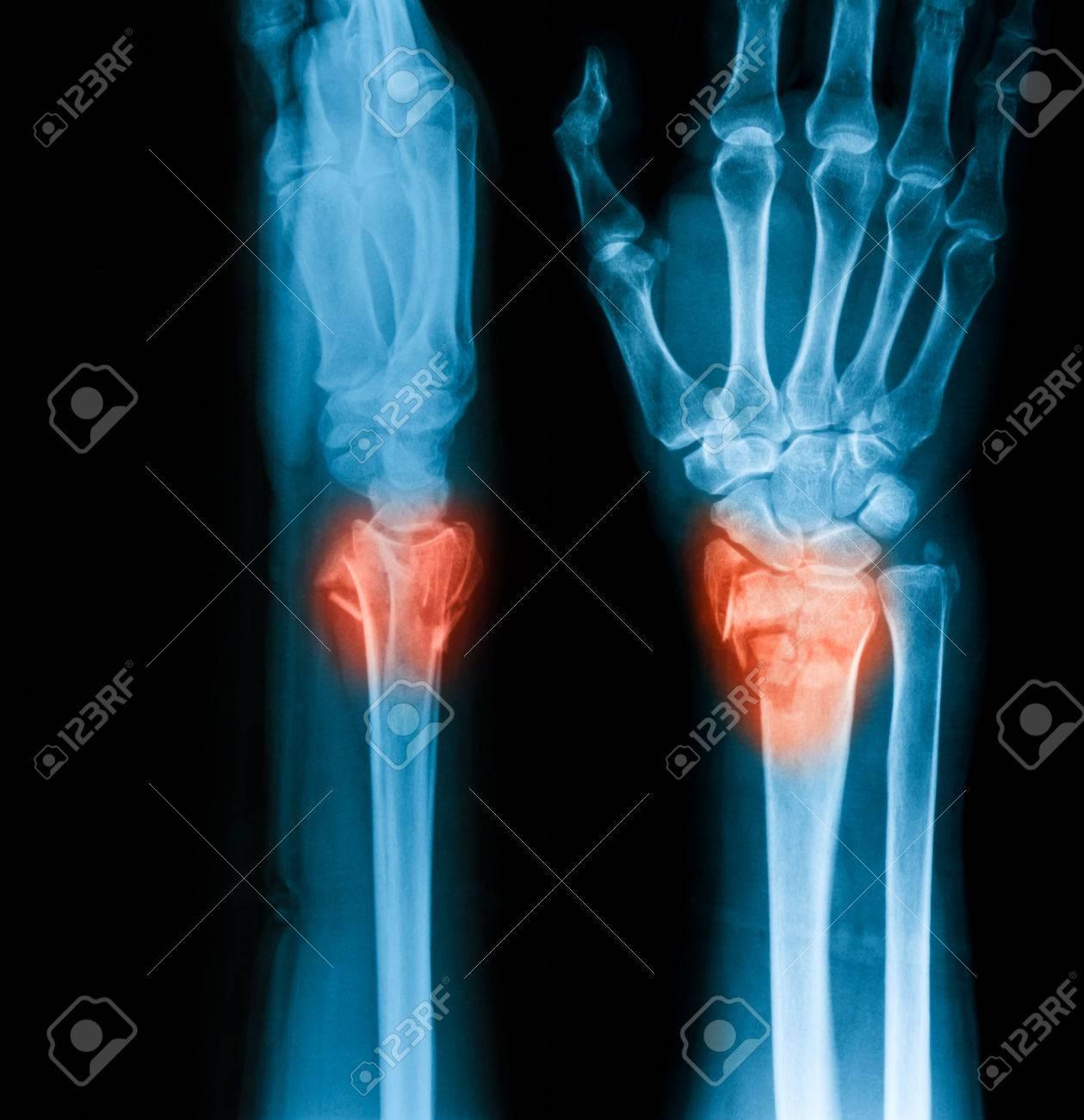 Imagen De La Radiografía De La Articulación De La Muñeca, PA Y ...