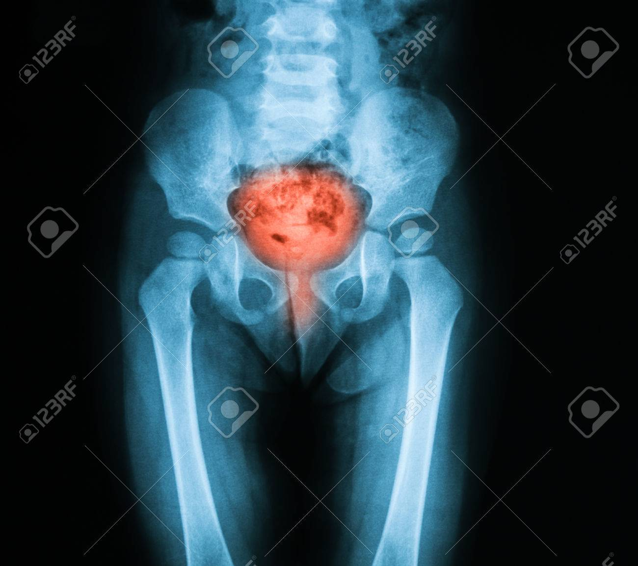 X-ray Image Of Bladder, Showing Cystitis Or Lower Urinary Tract ...