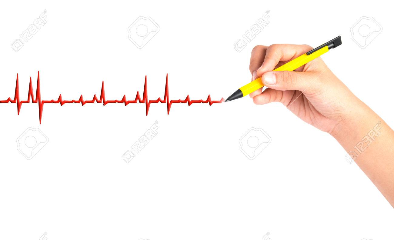 Hand Drawing Chart Electrocadiogram Ecg Of Ratio Heartbeat Stock