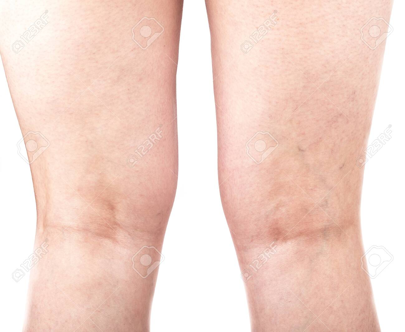 Female legs with varicose veins on the back of the legs. Healthy lifestyle. - 150021583