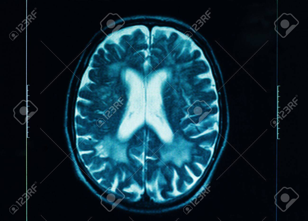 Sharp ct scan of the human brain stock photo picture and royalty sharp ct scan of the human brain stock photo 14564033 ccuart Images