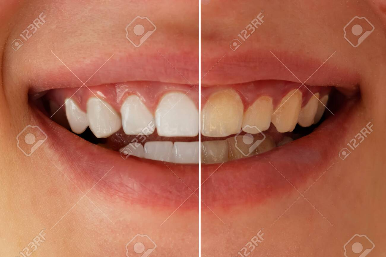 Teeth whitening before after. Woman teeth before and after whitening. Dental health concept. Oral care concept - 154098773