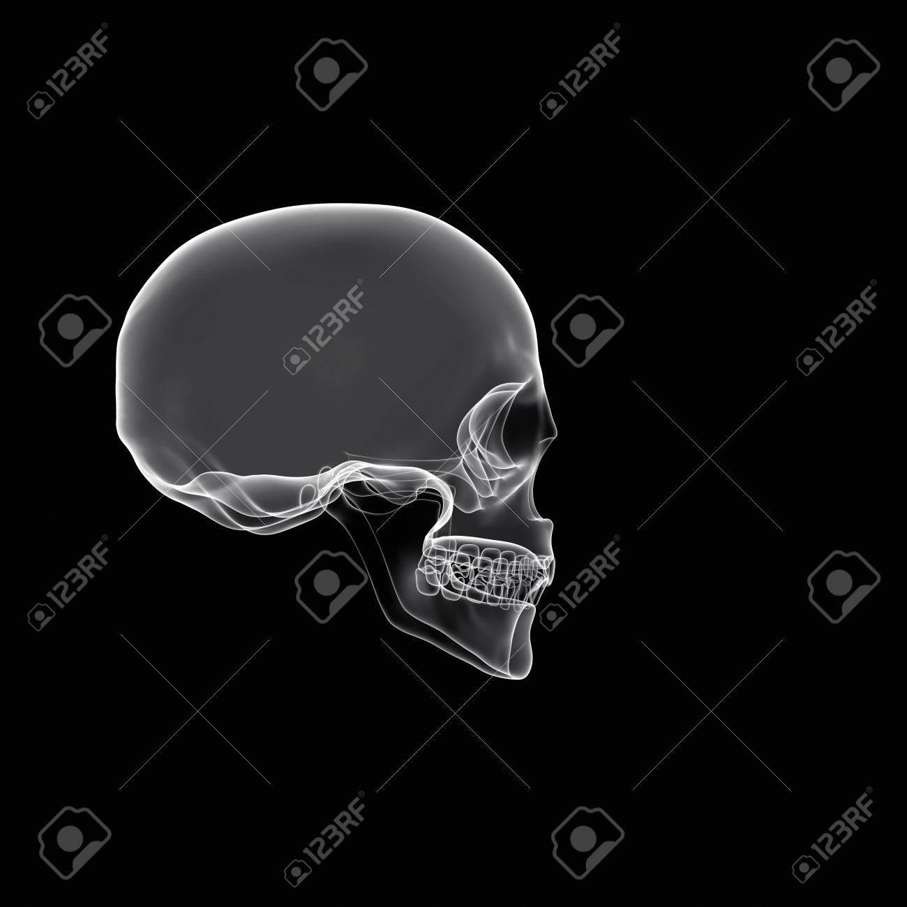 Cráneo Humano Aislado En Negro Con Rayos X O Efecto De Humo Fotos ...