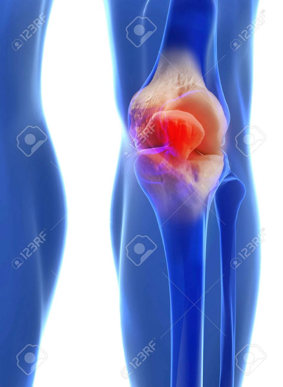 Human Knee Anatomy With Femur Tibia And Fibula Bones Under X Rays