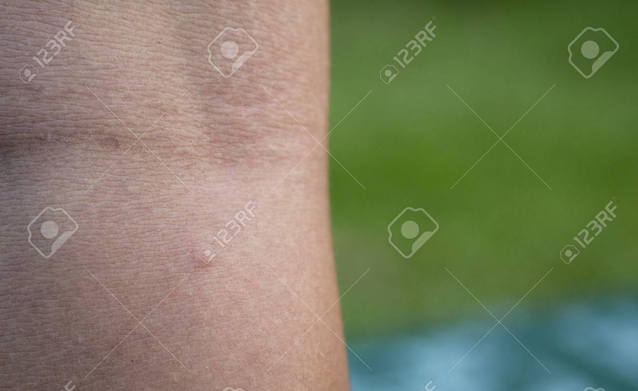 腫れる 蚊 る に 刺され