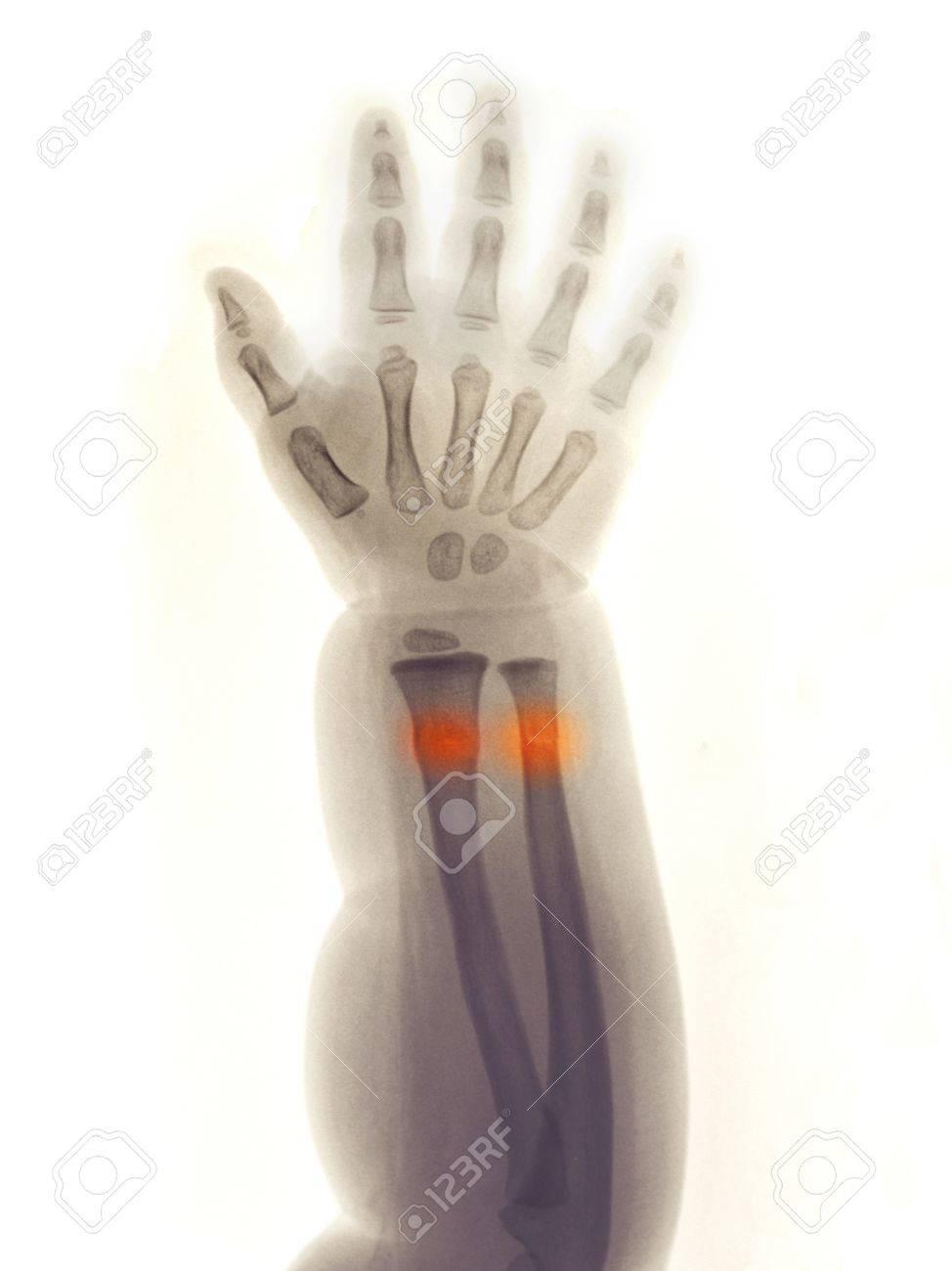 Unterarm Und Hand Röntgen Von Einem 2 Jahre Alten Mädchen, Fiel Und ...