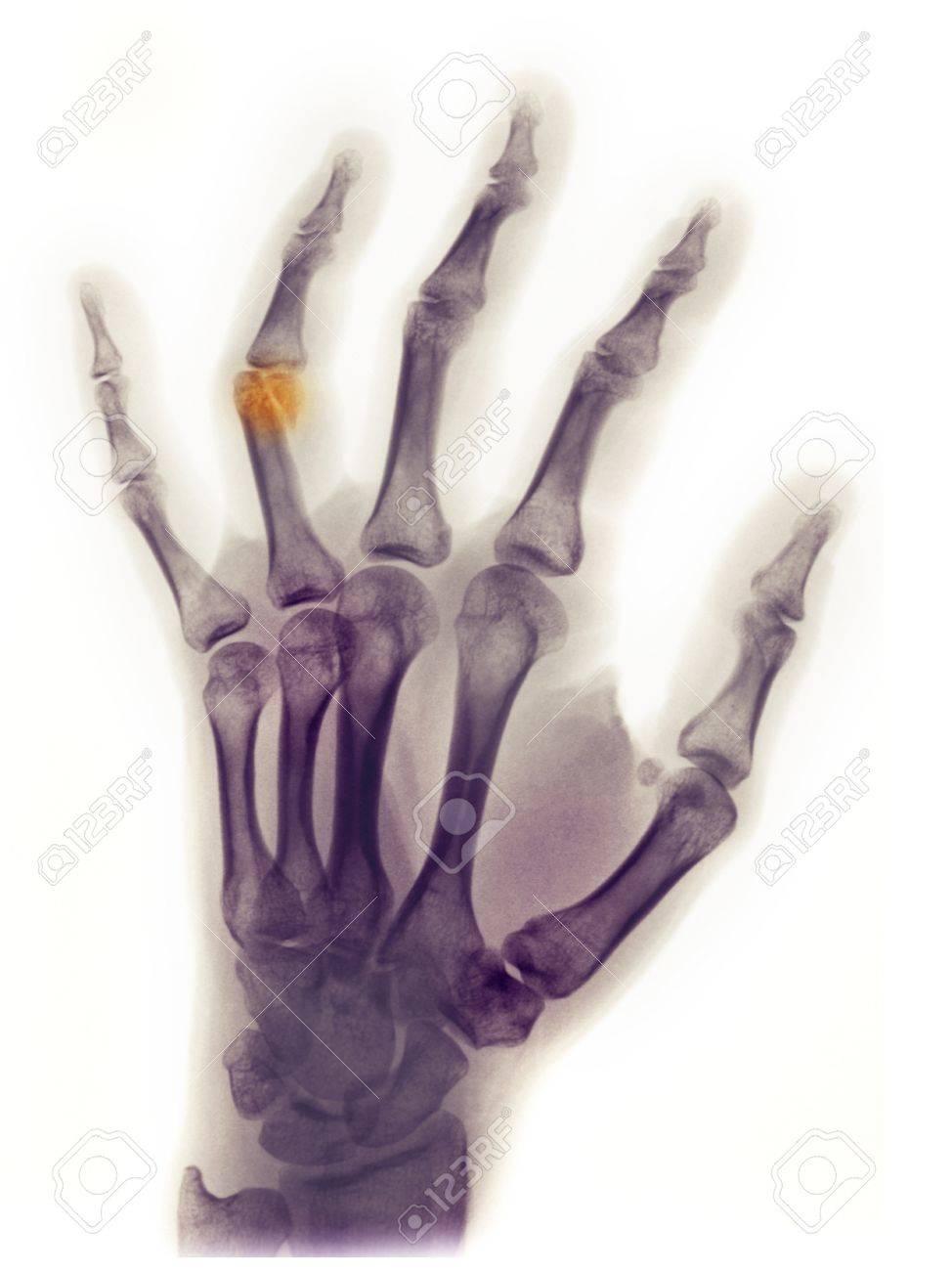 X-ray Mit Hand Des Weibchens 23-jährige Zeigen Einen Bruch Der ...