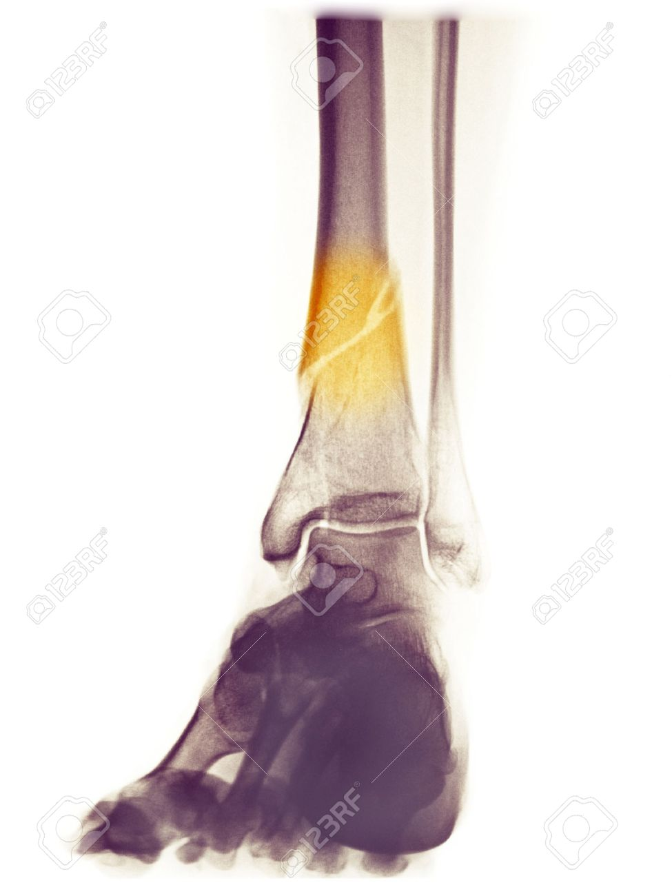 lower leg x-ray of a 48 year old female with a spiral fracture of the distal tibia Stock Photo - 7658250