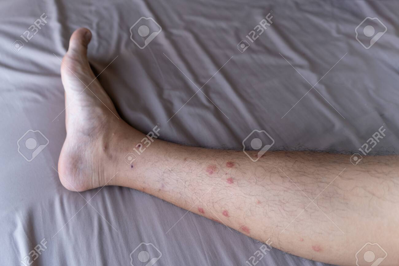 Close up of a man leg with allergy to insect, mosquito, or bug bites isolated. Itchy skin rash. Human organ part. - 127822160
