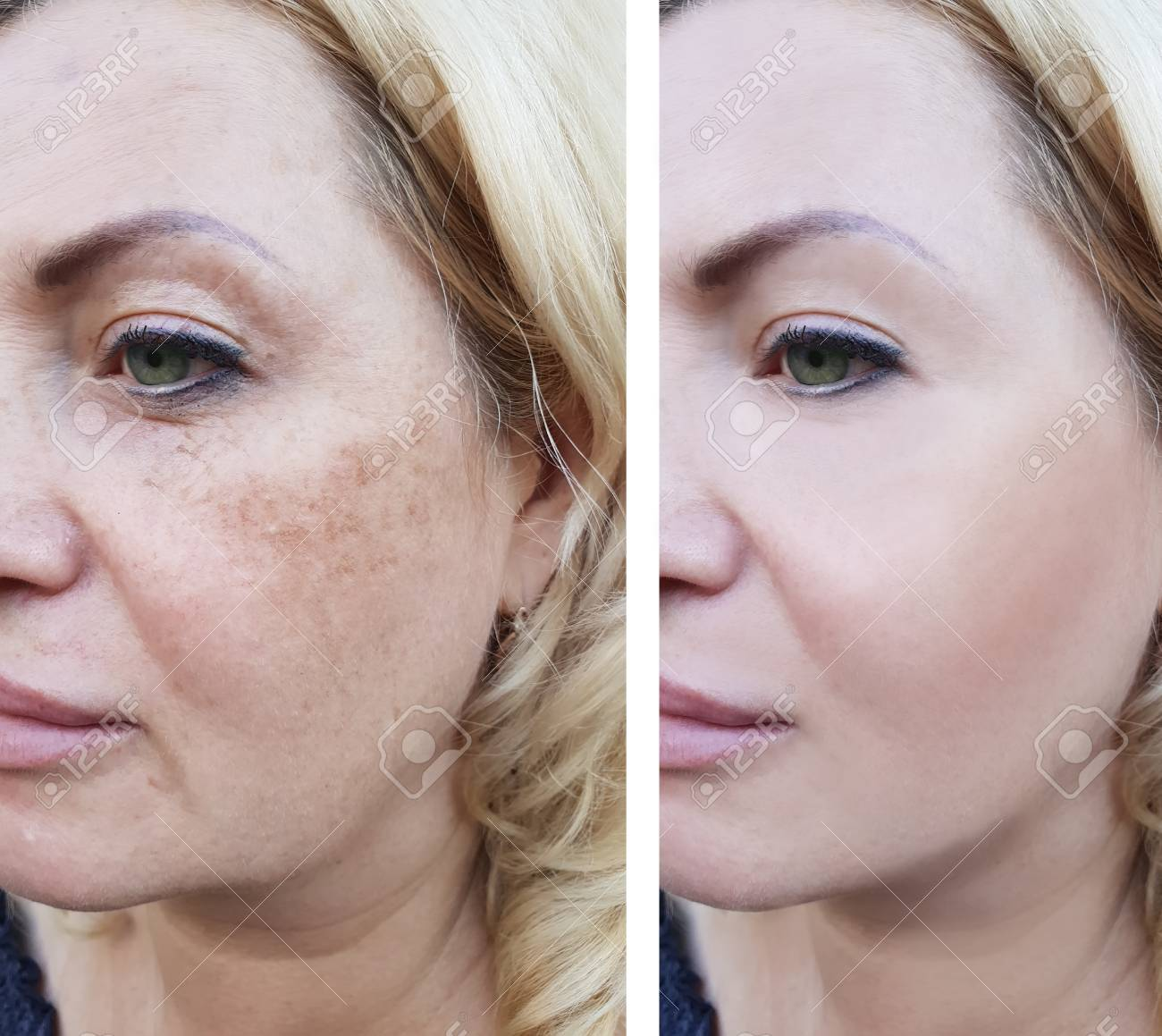 Woman wrinkles before and after pigmentation - 108498561