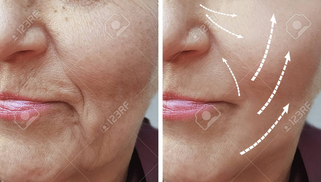 woman wrinkles before and after procedures - 110449257