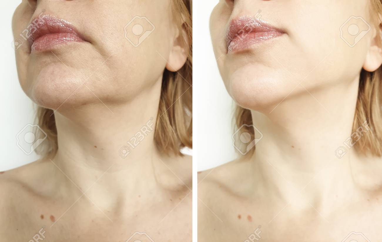 woman double chin lift before and after procedures - 117985921