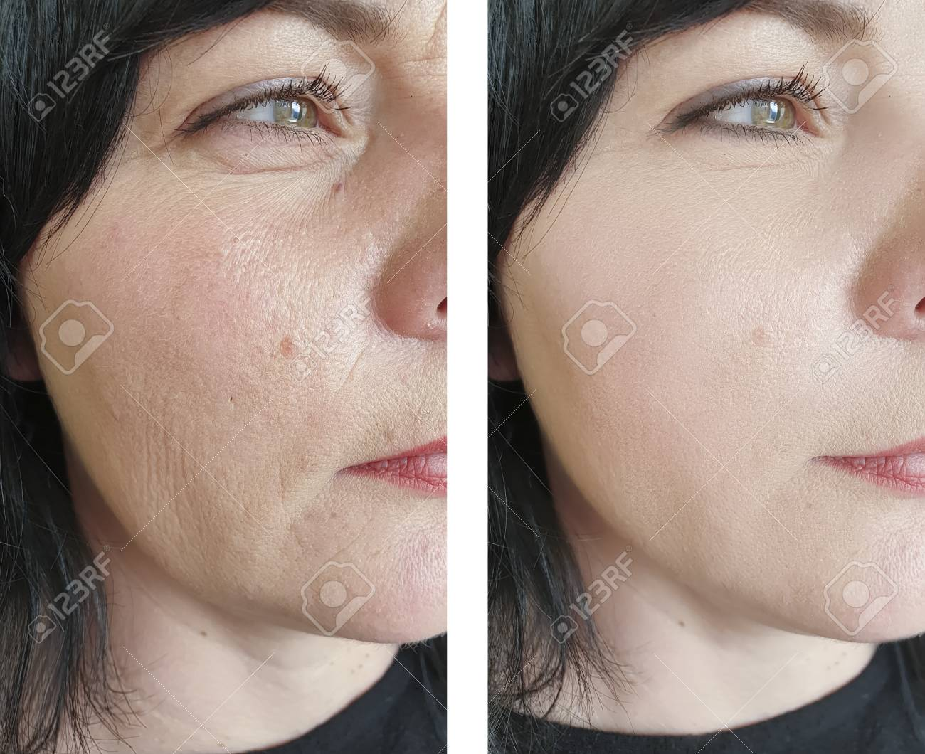 woman face wrinkles before and after treatments - 121527510
